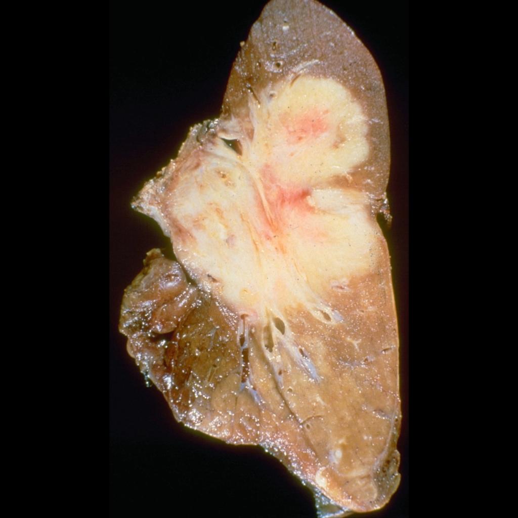 Gross pathological image of inflammatory myofibroblastic tumor