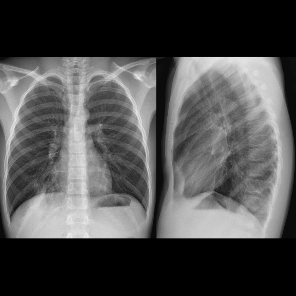 CXR of mycoplasma pneumonia