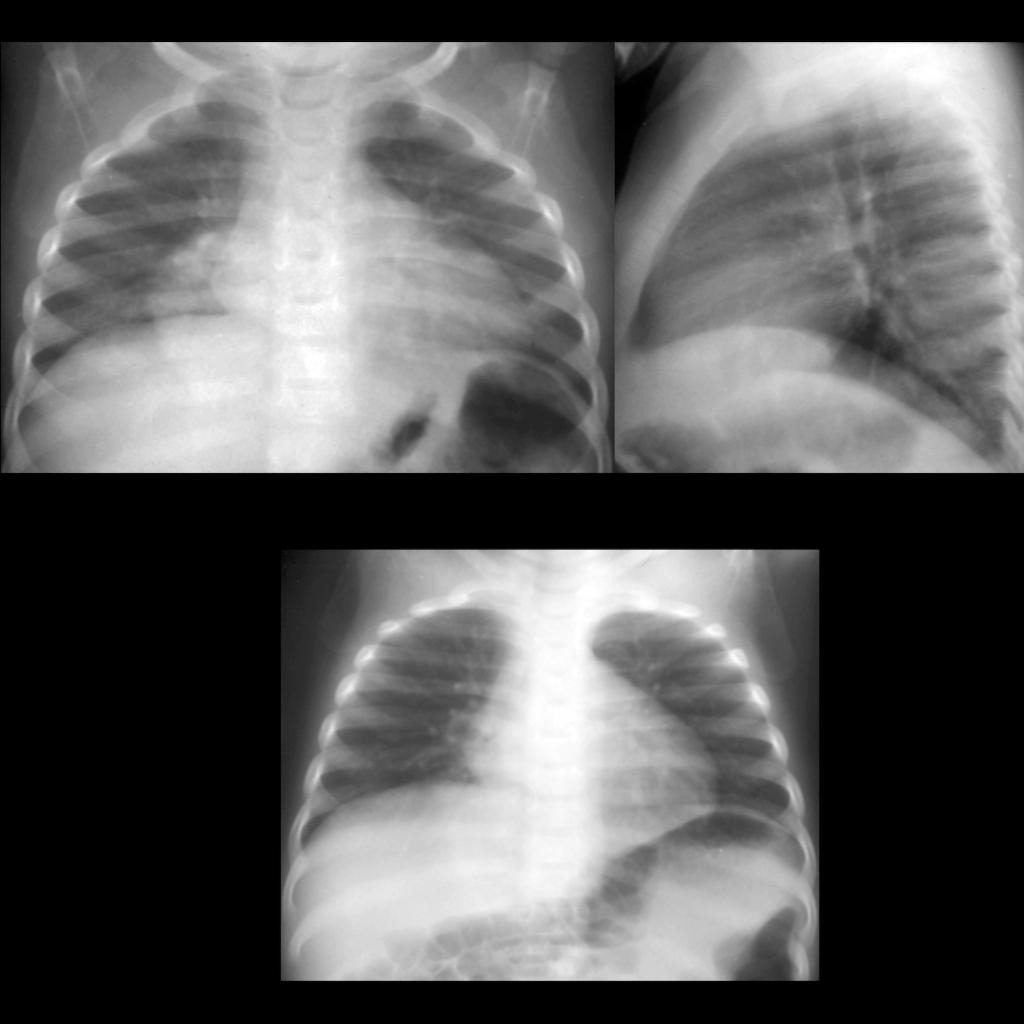 CXR of round pneumonia