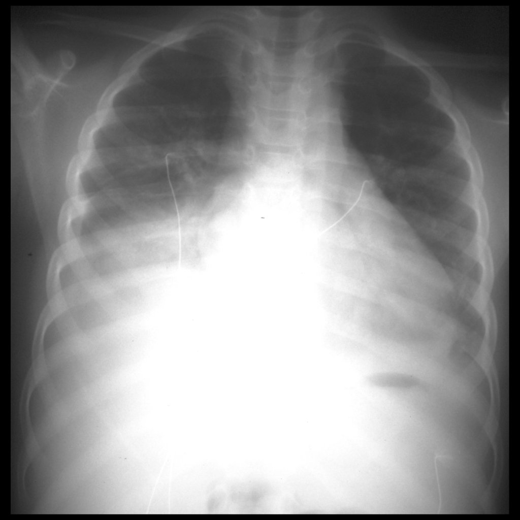 CXR of acute chest syndrome in sickle cell disease
