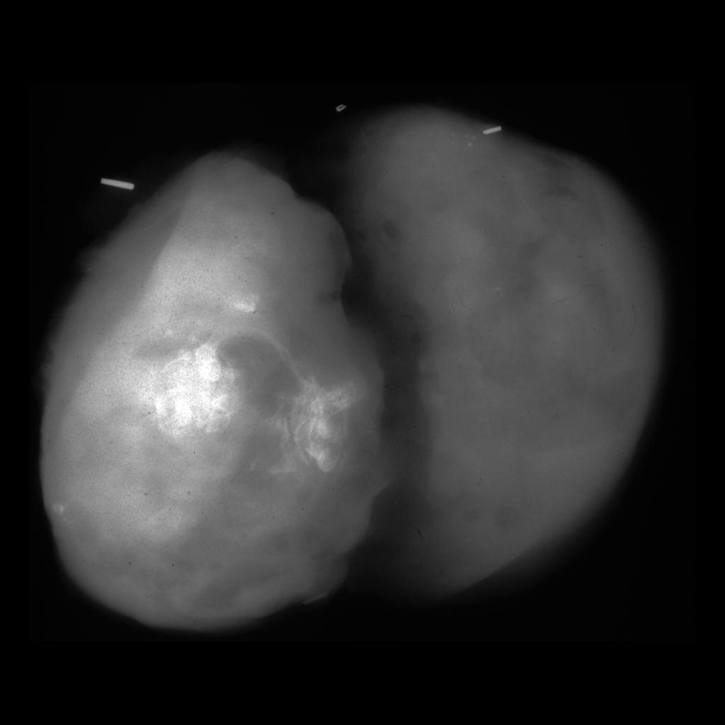 Specimen radiograph of thymic teratoma / mediastinal teratoma