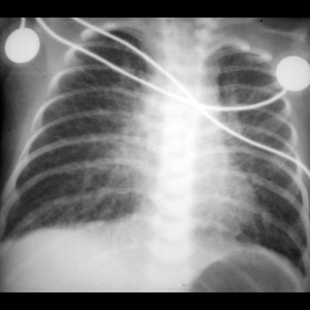 CXR of totally anomalous pulmonary venous return