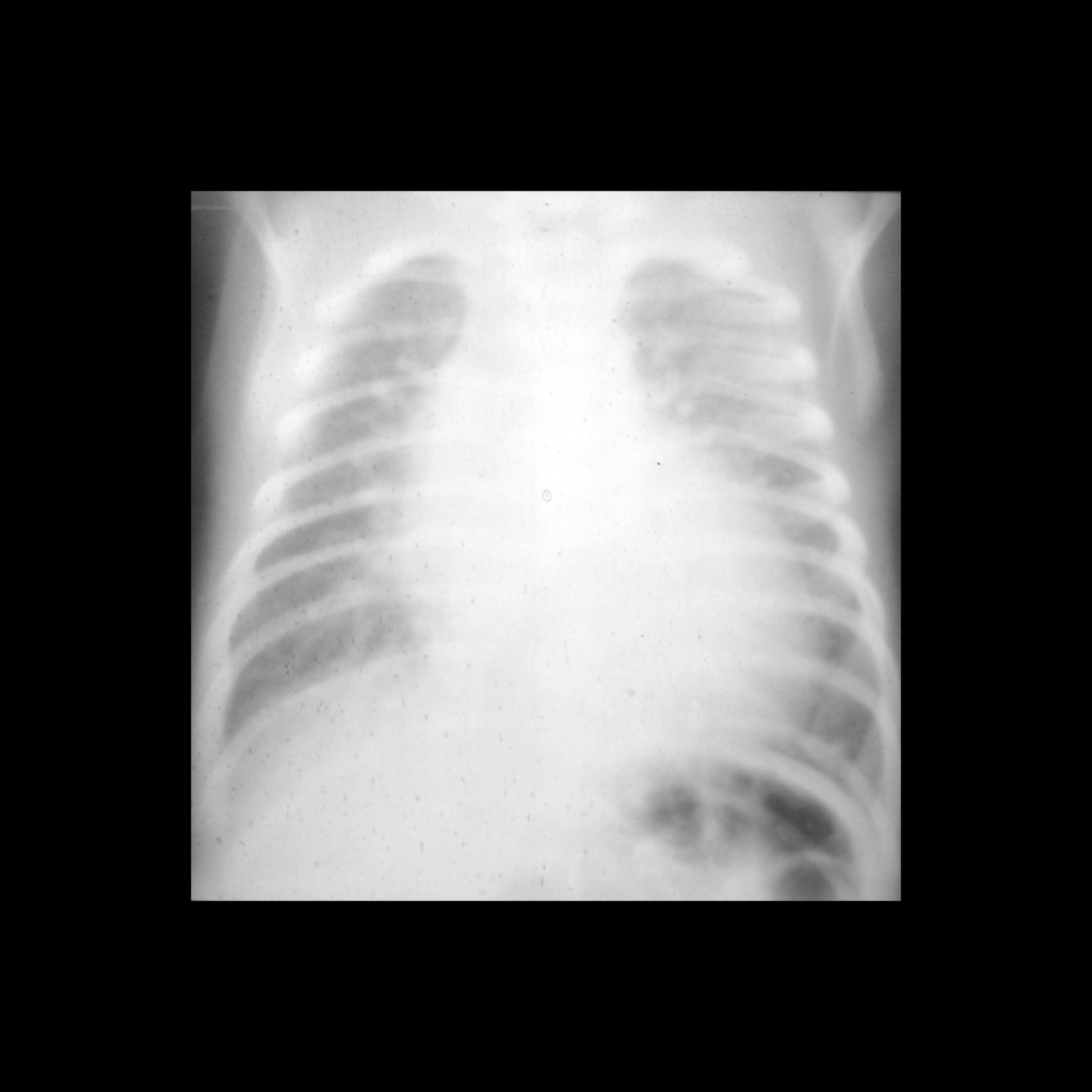 CXR of transposition of the great arteries / transposition of the great vessels / TGA