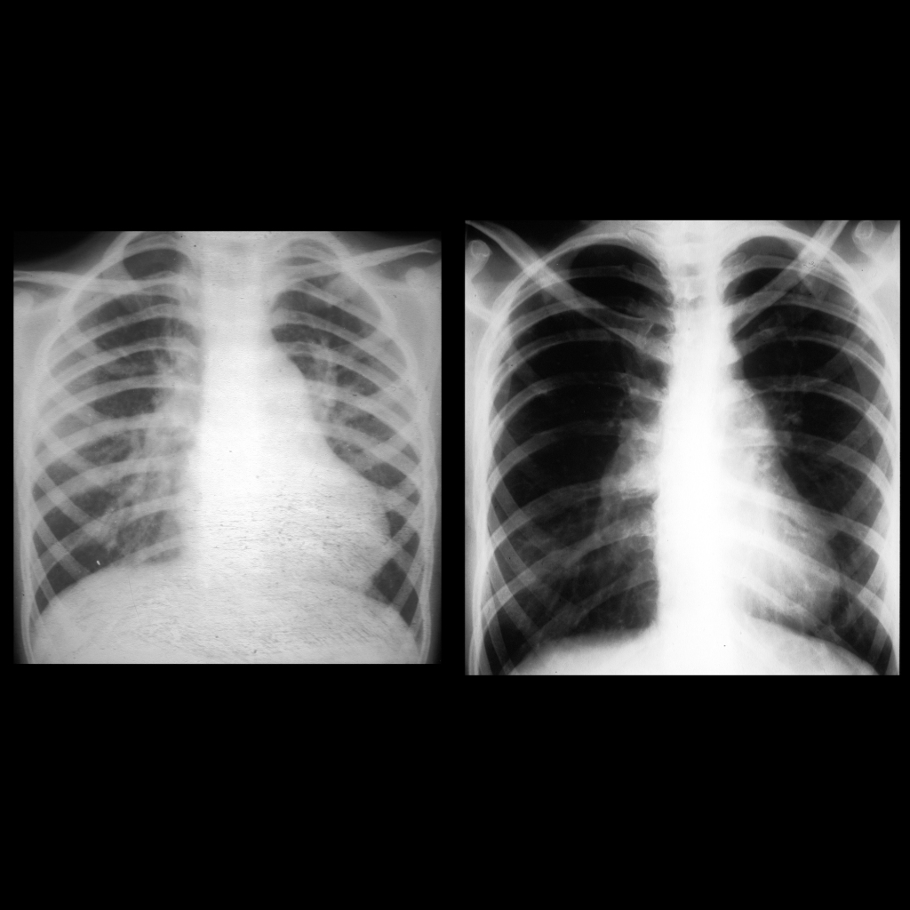 CXR of Eisenmenger syndrome due to ventricular septal defect / VSD