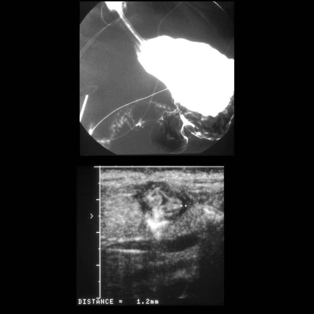 Upper GI and US of Prostaglandin E induced gastritis