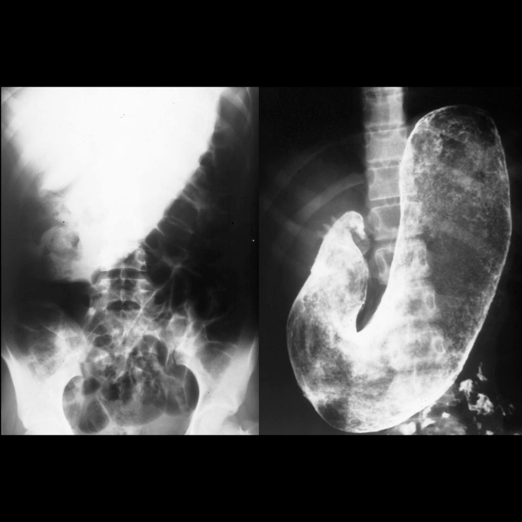 AXR and Upper GI of trichobezoar