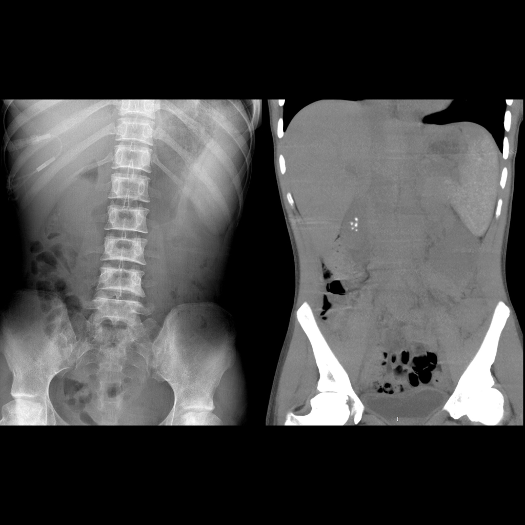 AXR and CT of cholelithiasis due to sickle cell disease