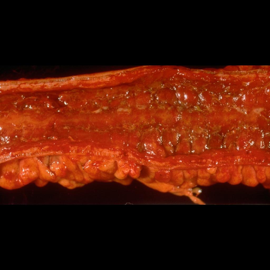 Gross pathological image of Chron's disease