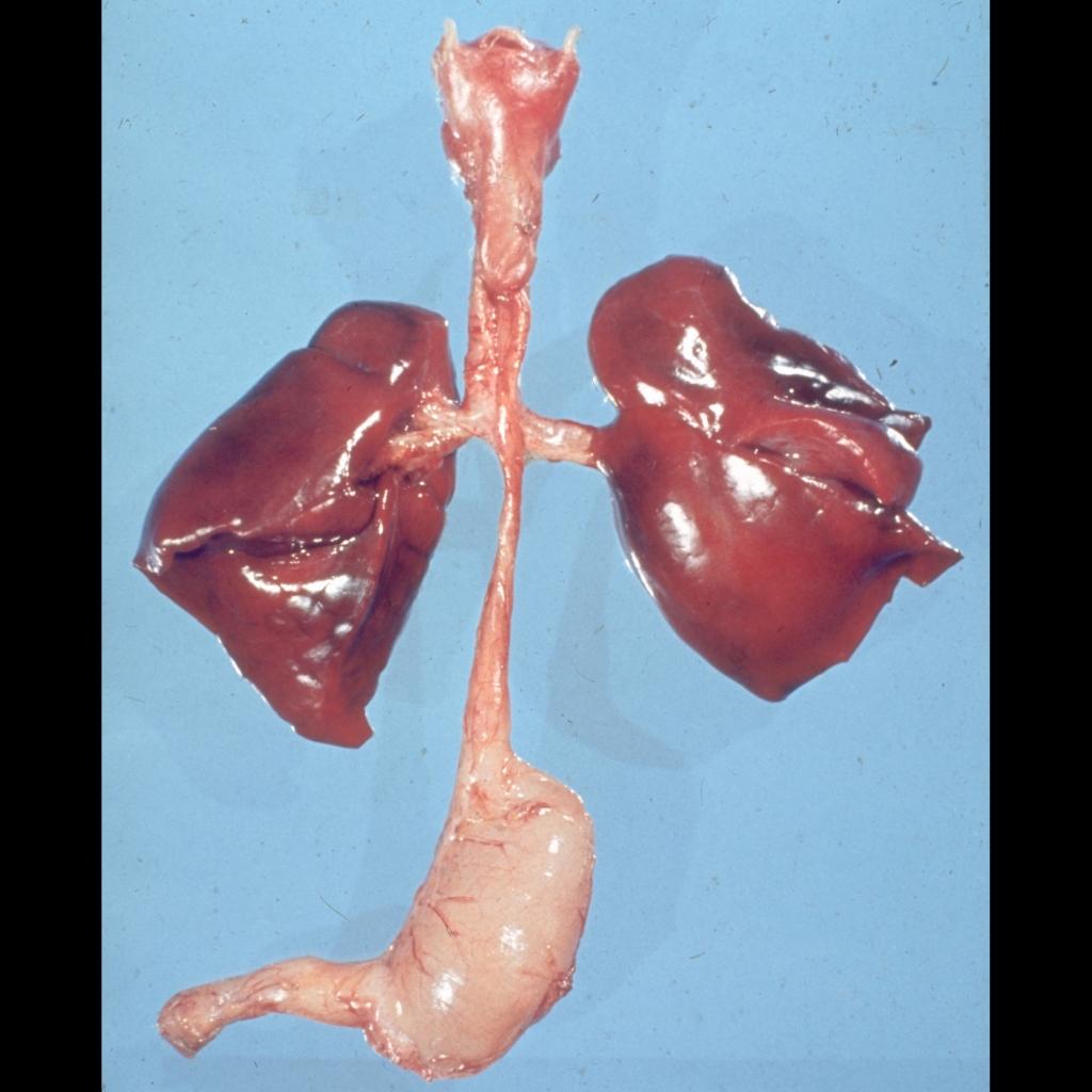 Pathologic image of esophageal atresia
