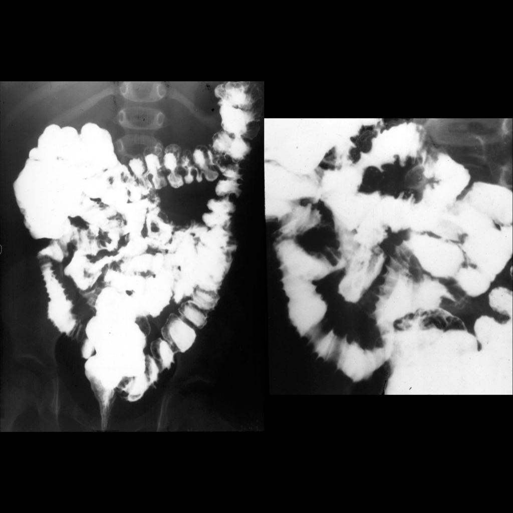 Small bowel follow through of Henoch-Schonlein purpura