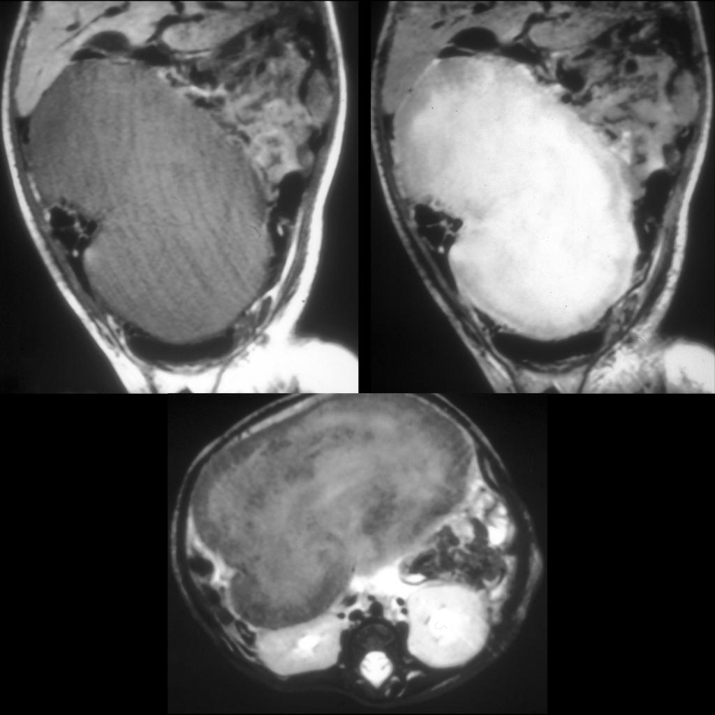 MRI of inflammatory myofibroblastic tumor