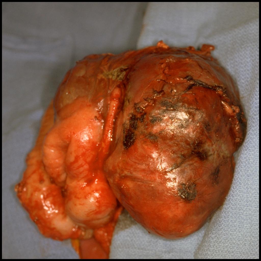Surgical image of inflammatory myofibroblastic tumor