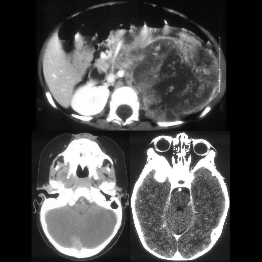 CT of neuroblastoma with orbital metastasis