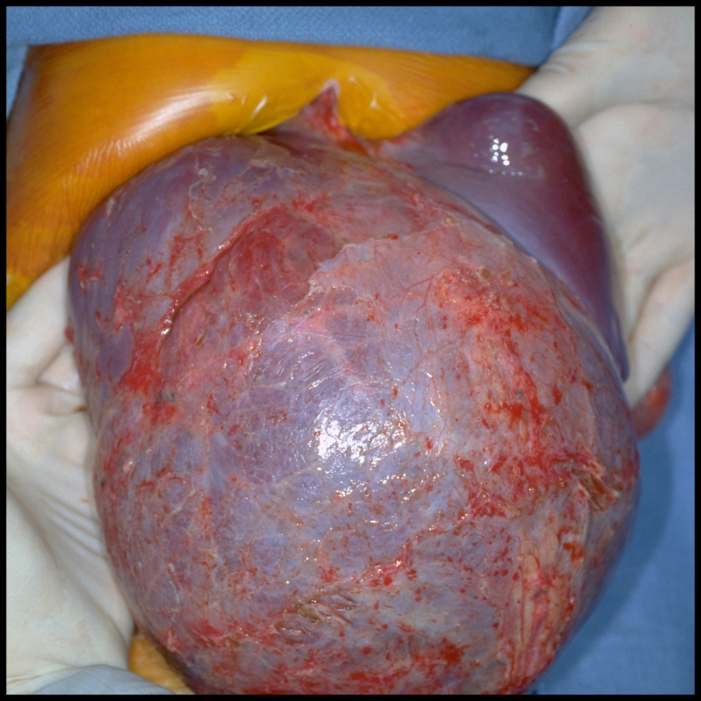 Surgical image of mesenchymal hamartoma
