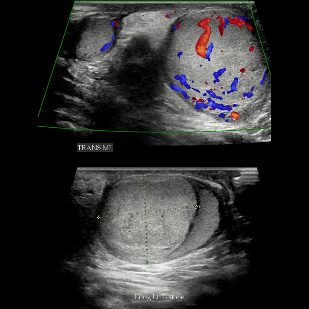 US of testicular yolk sac tumor