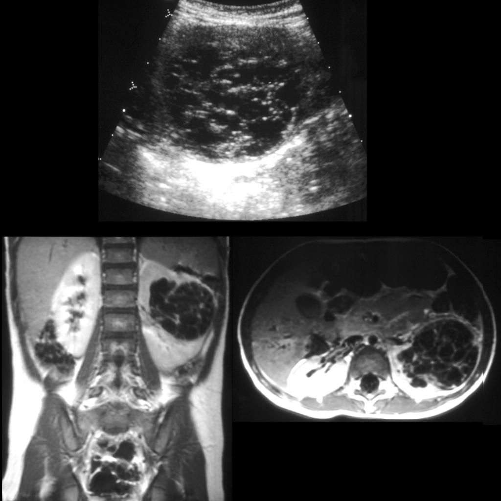 MRI of multilocular cystic nephroma