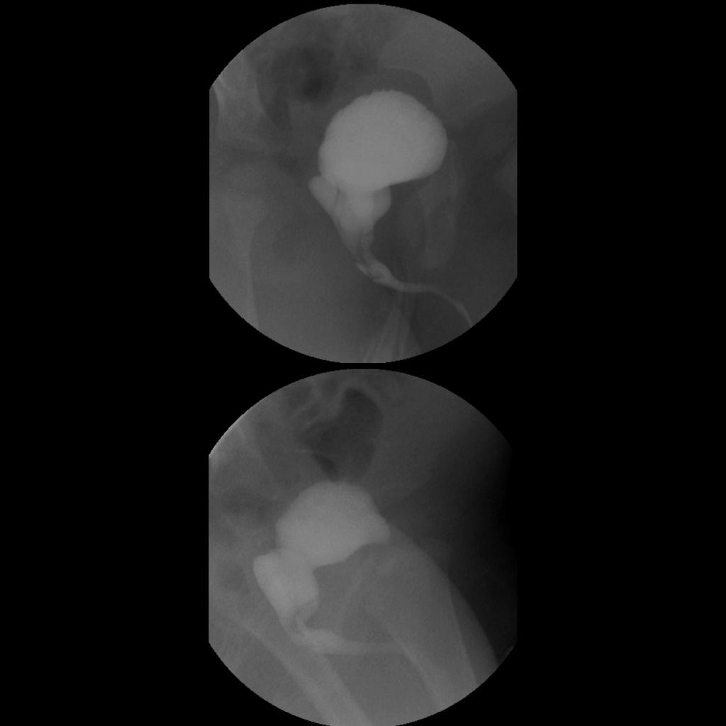 VCUG of prostatic utricle in hypospadias